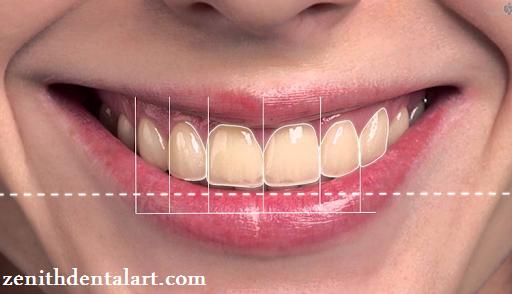 افزایش VD دندان