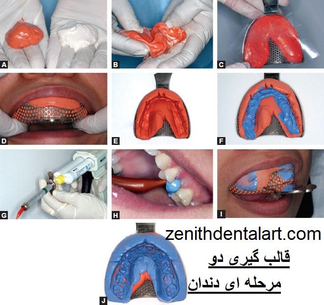 قالب گیری دو مرحله ای دندان