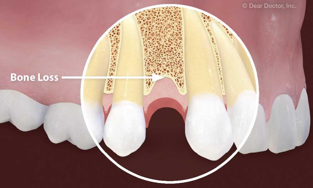 اثر Over load اکلوزالی بر تحلیل استخوان اطراف ایمپلنت
