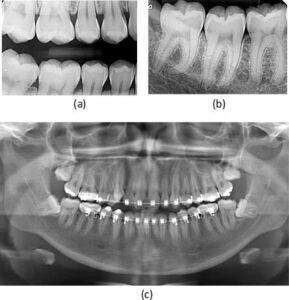 انواع رادیوگرافی های دندان