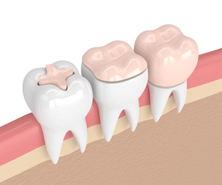 دندانپزشکی بیومیمتیک ( قسمت پنجاه و چهارم )