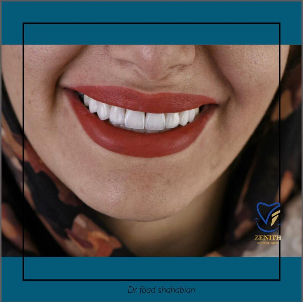 عوامل موثر بر رنگ نهایی در درمان زیبایی