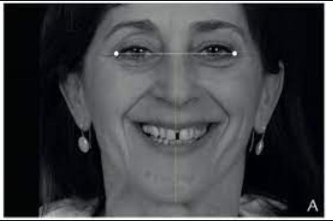 Facial Flow کانسپت در طراحی لبخند